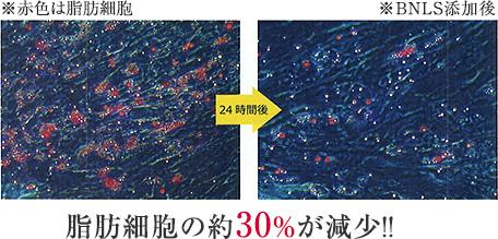 脂肪細胞の約30%が減少