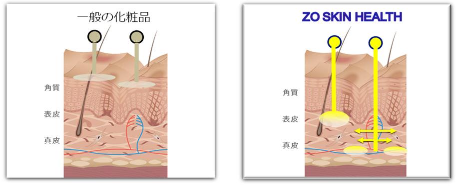 ゼオスキンヘルスの特徴