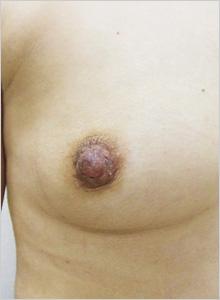 手術後(右側)