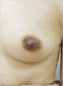 手術後(左側)