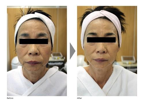 Dr.EVO症例写真