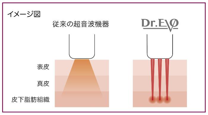 ドクターエボと従来の超音波機器比較