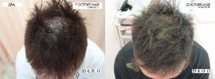ドクターズヘア症例写真