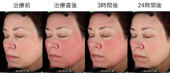 ピコシュア治療後の肌状態