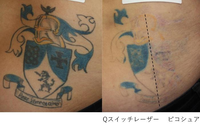 タトゥー除去 Qスイッチレーザーとピコシュアの比較