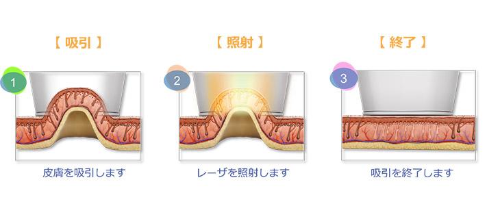 >吸引してレーザー光を照射するイメージ
